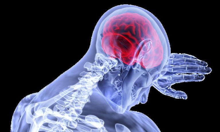 Udar mózgu w czasie pandemii- reaguj!